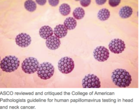 ASCO Critiques Guideline for HPV Testing in Head and Neck Cancer